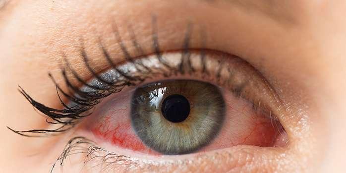 Göz Alerjilerini Hafife Almayın